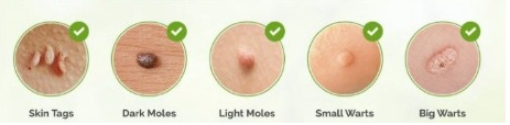 skin tags pictures