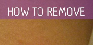 Best Skin Tags Removal Cream
