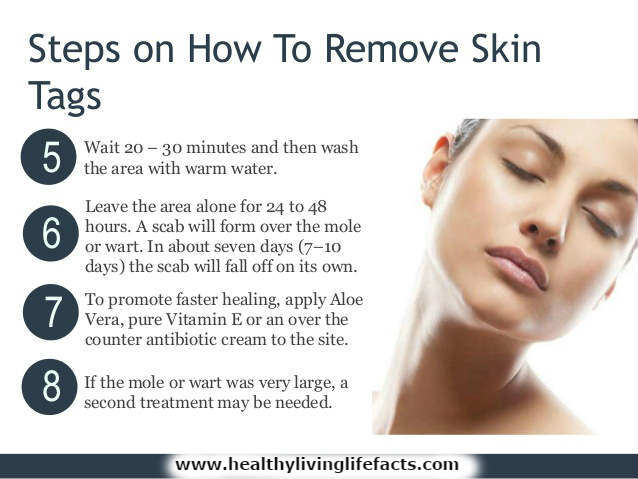 Skin Tag Removal Cream