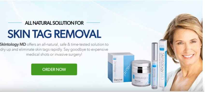 Skintology Skin Tag Removal Reviews : Is it a Scam Or Legit?