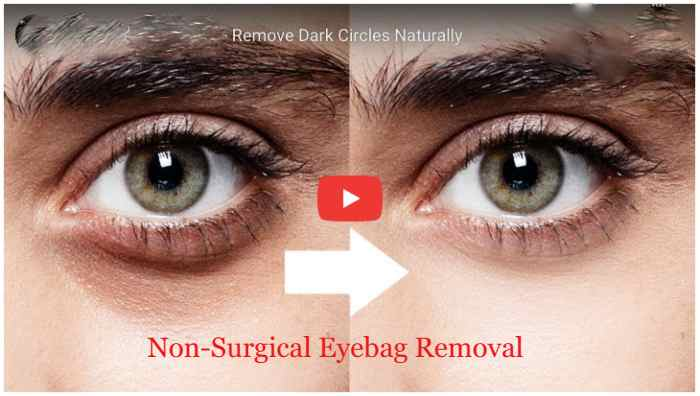 5th & Glow Cyabags Review : How To Remove Eye Bags Permanently