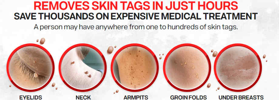 skin tags pictures - Derma Correct