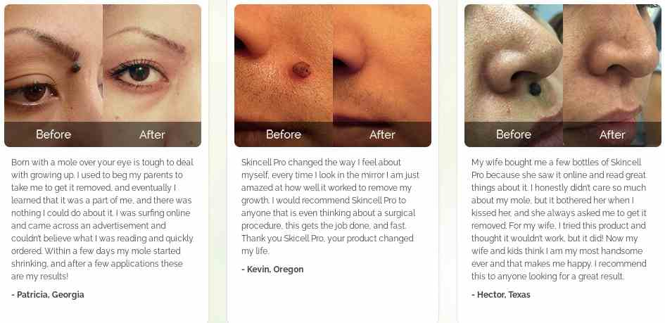 Skincell Pro Shark Tank : Skincell Pro Customer's reviews- skincell pro before and after pictures
