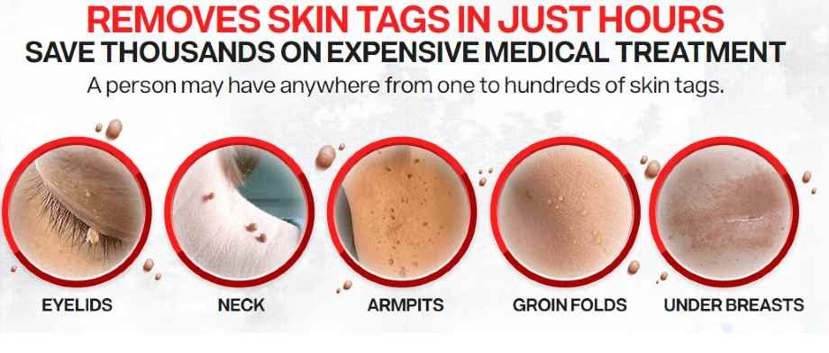 skin tags pictures -Skin Tags In Pubic Area